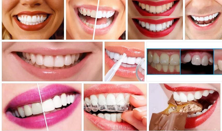 Приснились белые зубы - толкование сна по сонниками