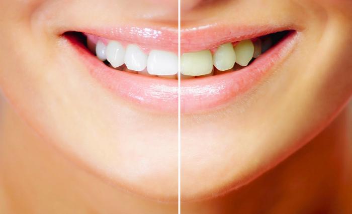 Приснилось всталять зубы – толкование сна по сонникам