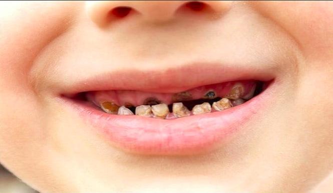 Приснилось выпадают гнилые зубы – толкование сна по сонникам